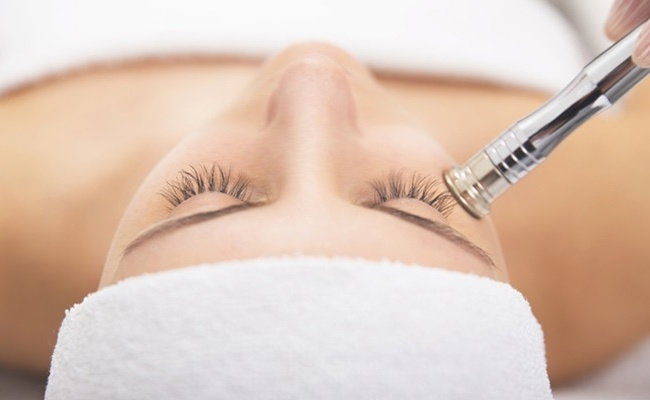 What is Microdermabrasion liquivida lounge 3