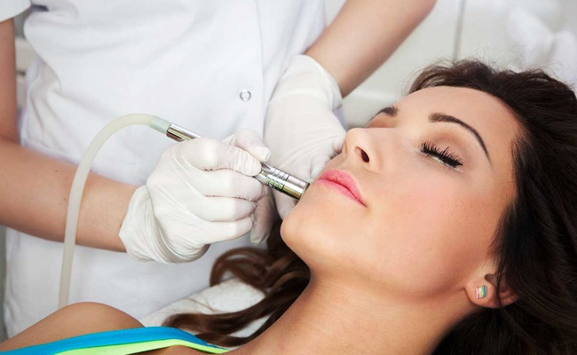 What is Microdermabrasion liquivida lounge